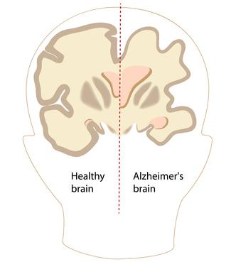 Gesundes Gehirn/Gehirn mit Alzheimer