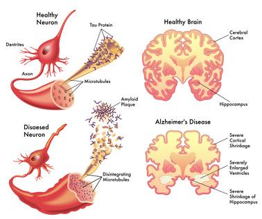 Gesundes und Alzheimer Hirn