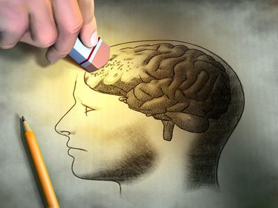 Gehirn Merkfähigkeitsstörungen