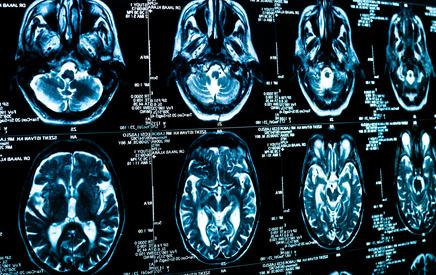 Ein Blick ins Gehirn