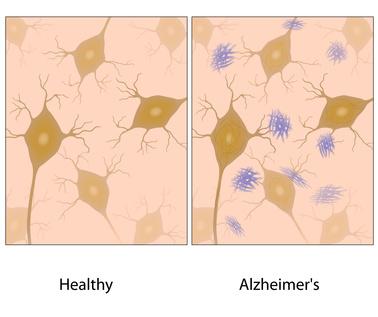 Wie entsteht Alzheimer und was kann man dagege tun?